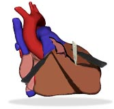 Representation of a heart, Cardiac Surgeon, Trivandrum